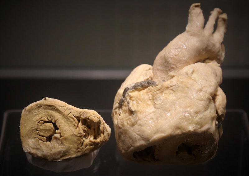 Heartmuseum-4-5-추가_m.jpg