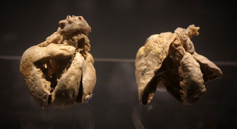 Heartmuseum-6-5_m.jpg