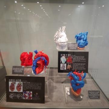 비후성 심근증과 어려운 심장 이식